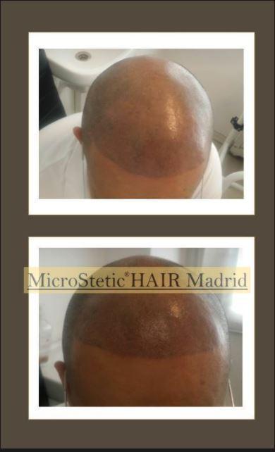 micropigmentación-capilar-cuidados-ventajas-mujeres-desventajas