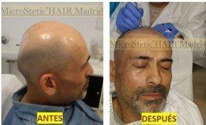 micropigmentación-capilar-tricopigmentacion-mujer-hombre-injerto
